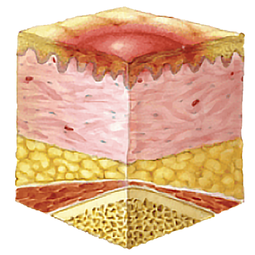 image showing the pressure ulcer stage one