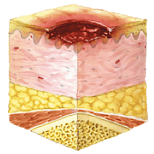 image showing pressure ulcer stage 2