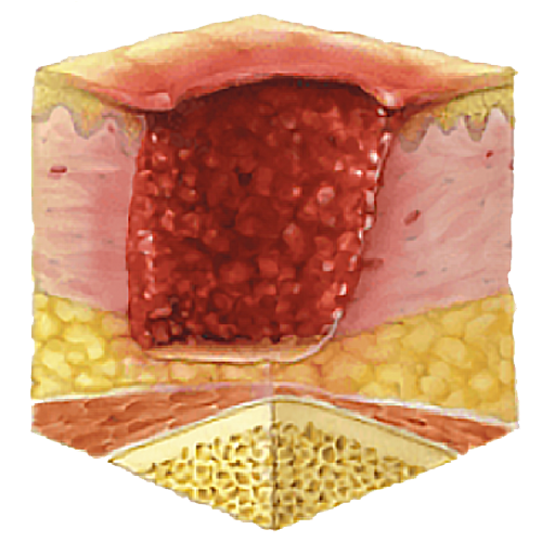 image showing pressure ulcer stage 3