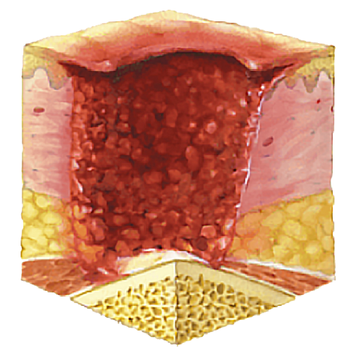 image showing pressure ulcer stage 4