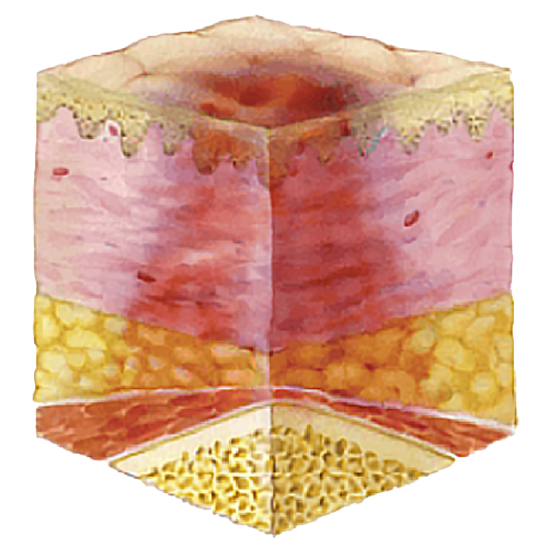 image showing pressure ulcer stage 5