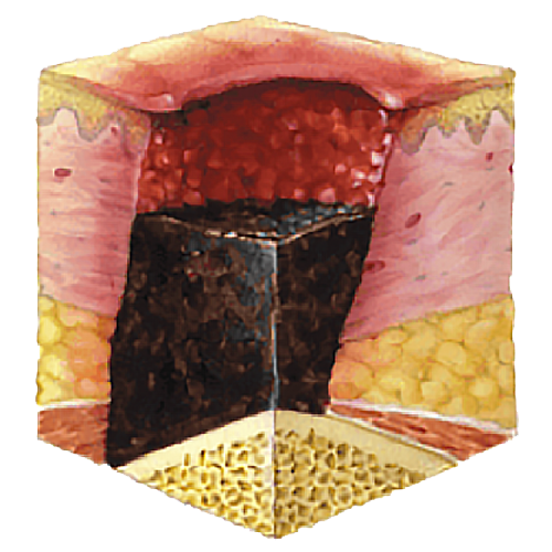 image showing pressure ulcer stage 6