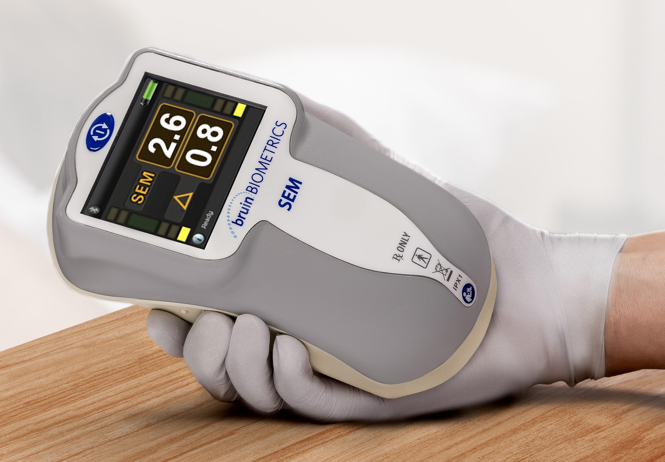 SEM Scanner 200