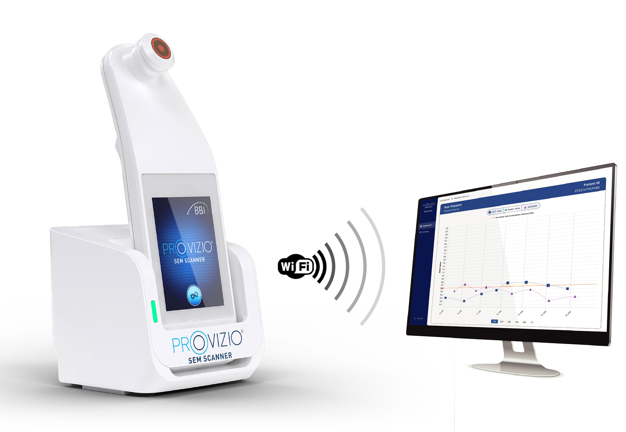 Provizio SEM Scanner transmitting data to computer screen